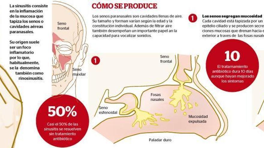 Sinusitis, la molesta enfermedad de los senos paranasales