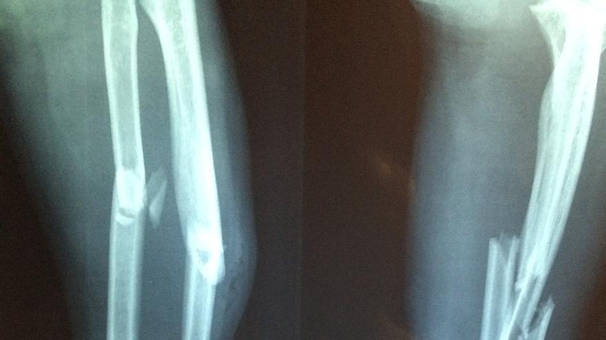 El Clínico de València investiga el análisis de micro partículas de ARN para diagnosticar la osteoporosis de forma precoz