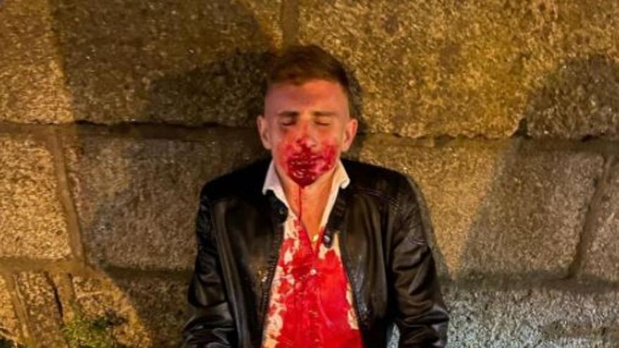 Le desfiguran la cara a un taekwondista olímpico en plena calle de Dublín