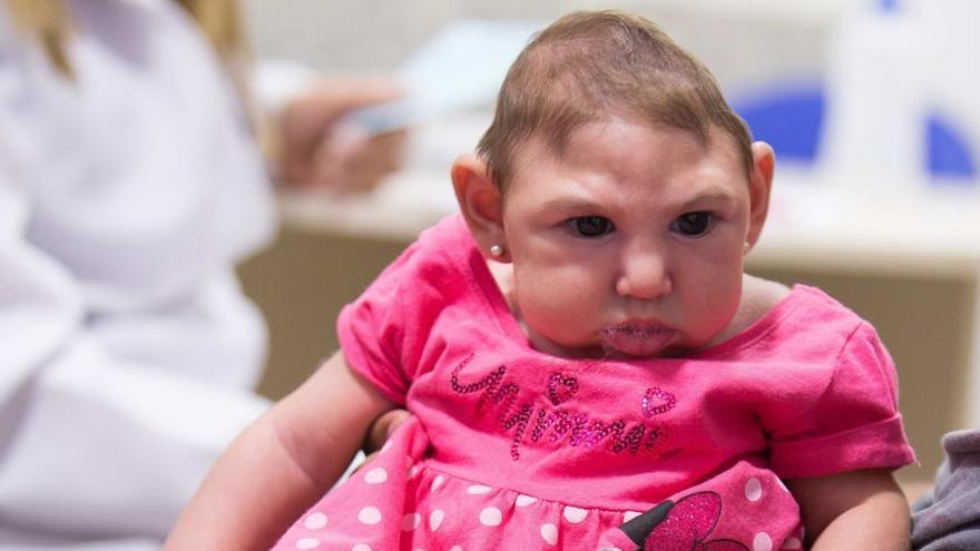 El zika puede causar microcefalia en uno de cada cien embarazos