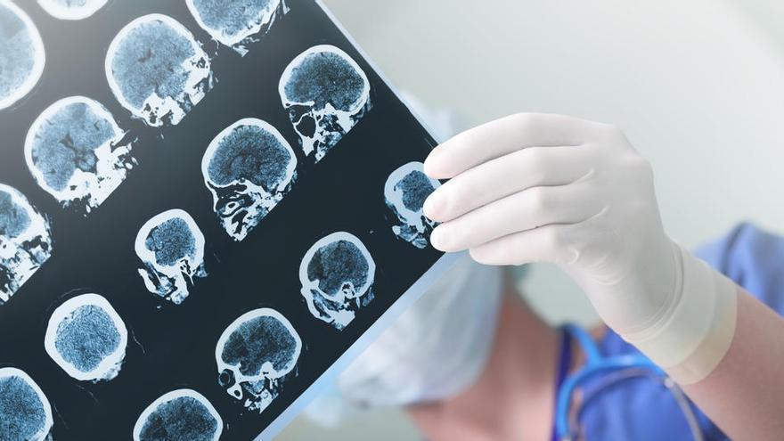 Una nueva terapia probada en ratones logra detener la progresión del Parkinson