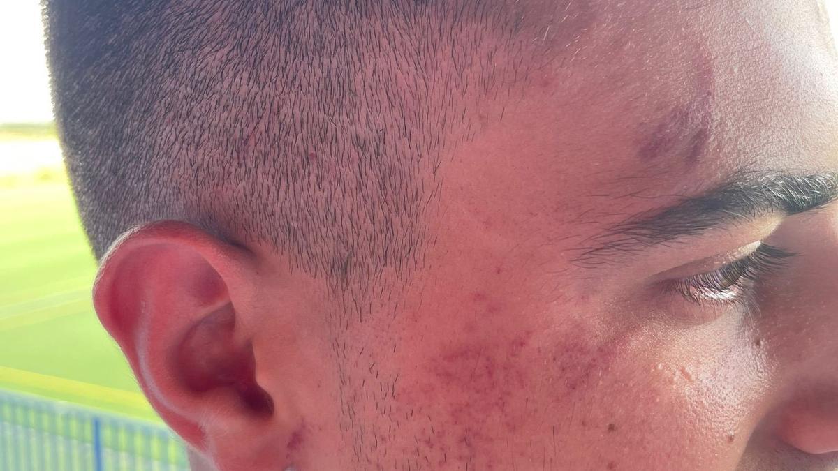 Imagen del jugador agredido
