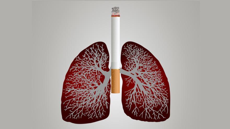 El CHOP logra la supervivencia en cáncer de pulmón no operable a través de inmunoterapia
