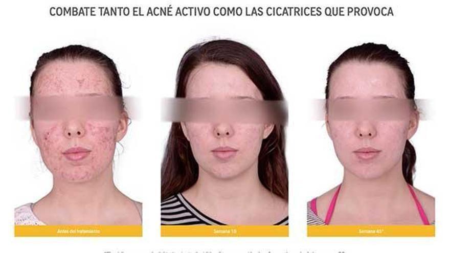 Cómo eliminar el acné y sus marcas de una forma definitiva