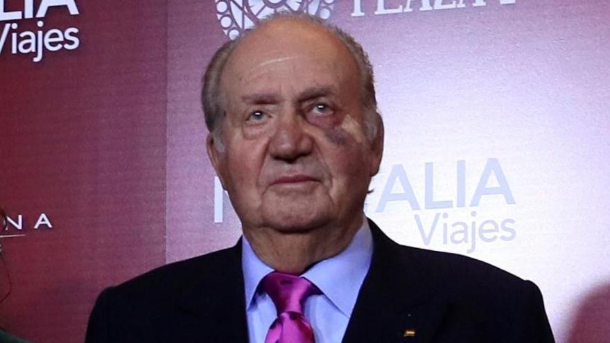 El Rey Juan Carlos preside una gala de toreo con un fuerte moratón en el ojo