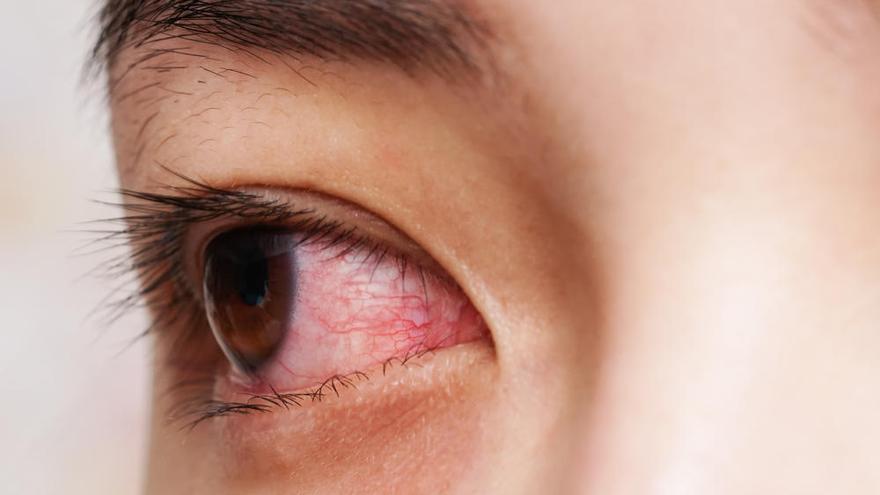 La conjuntivitis puede ser el primer síntoma de coronavirus