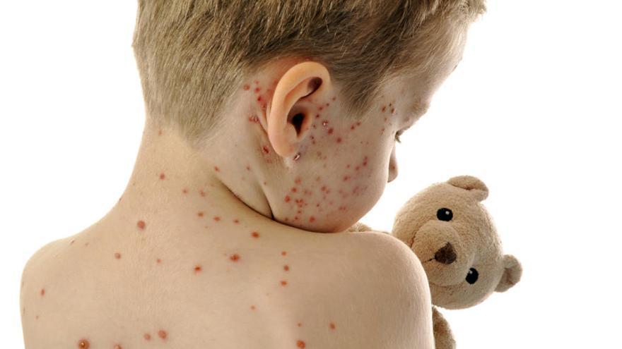 El sarampión, una enfermedad olvidada que repunta en Europa