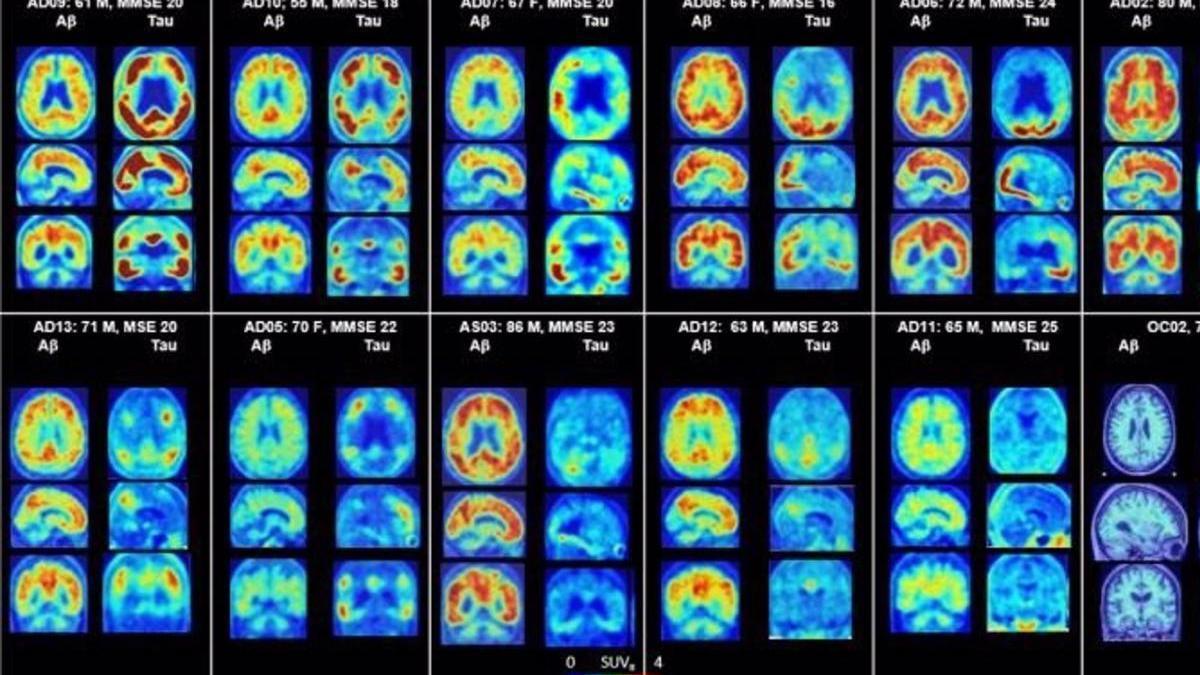 PET del cerebro que muestra placas amiloides y proteínas tau en Alzheimer.