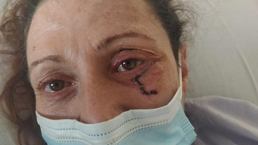 Brutal paliza a una mujer de Villena por defender a su hijo de una familia de okupas