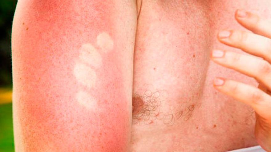 El remedio casero de moda para tratar las quemaduras del sol y eliminarlas lo antes poible