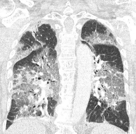 Escáner del paciente que rechazó AstraZeneca y ahora está en la UCI
