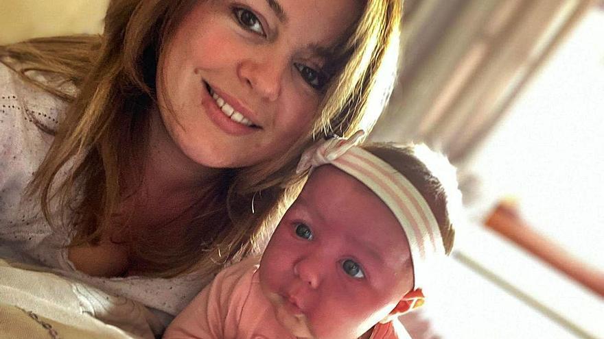 Ariya, la bebé de Benissa que lucha contra la enfermedad rara de Sturge Weber