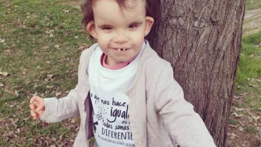 La primera niña con Menke-Hennekam en España busca fondos para su enfermedad