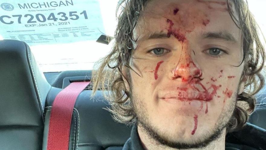 Un youtuber se dispara accidentalmente en la cabeza