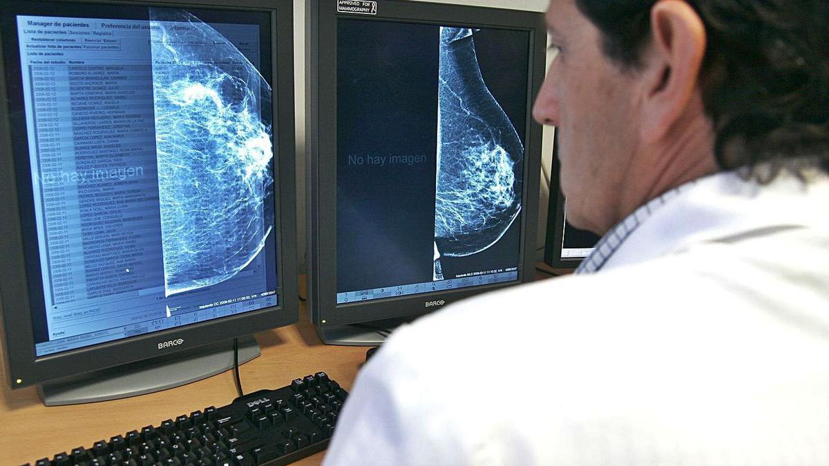 Un médico consulta una mamografía en una pantalla.