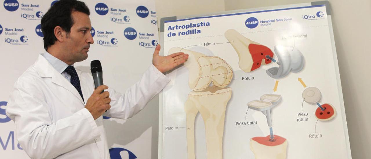 El gasto en prótesis para la sanidad: 133,2 millones  al año y subiendo