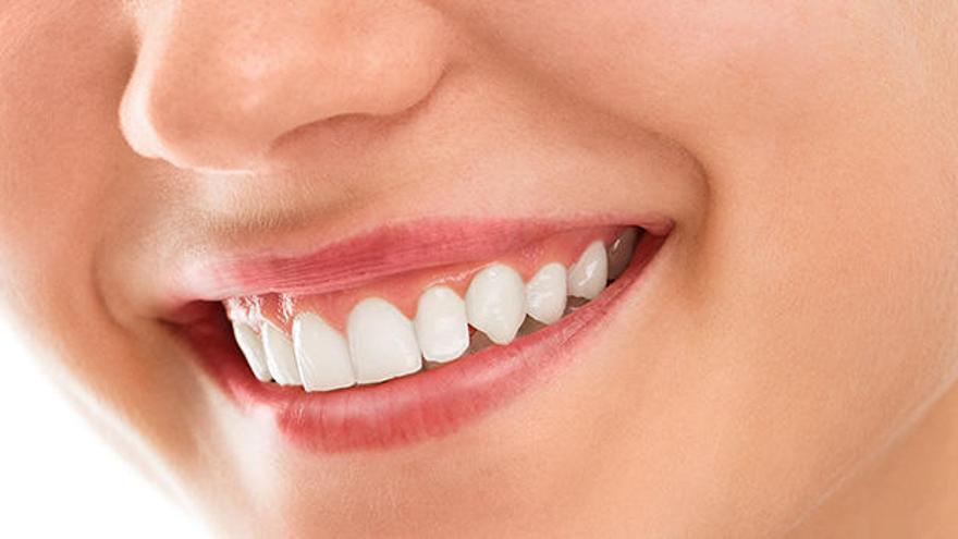 Tipos de implantes dentales y precios