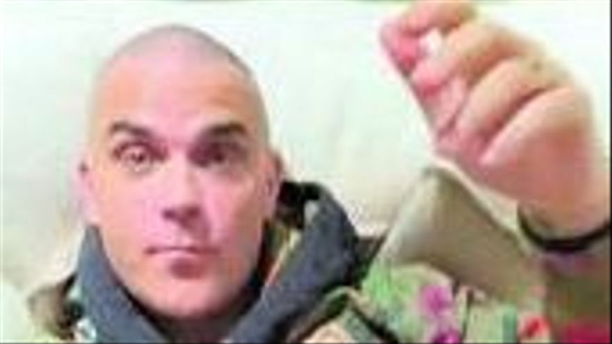 Robbie Williams, rapado al cero