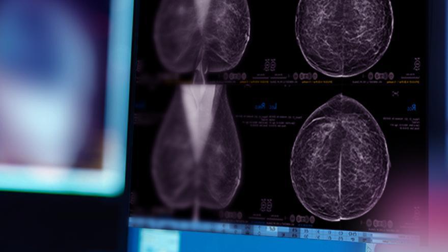 El mamógrafo 3D más avanzado para detectar el cáncer de mama