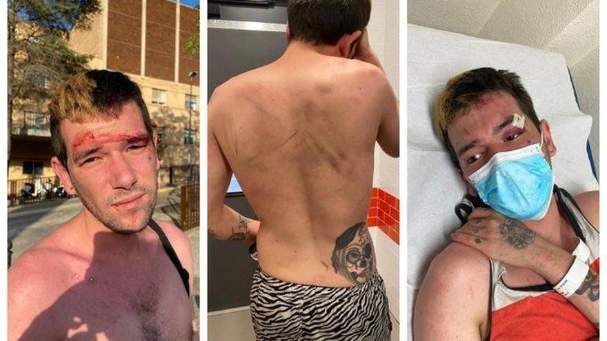 """Agresión homófoba en el Hospital de Castelló:  """"No te quejes, cosas más grandes te has metido por el culo"""""""