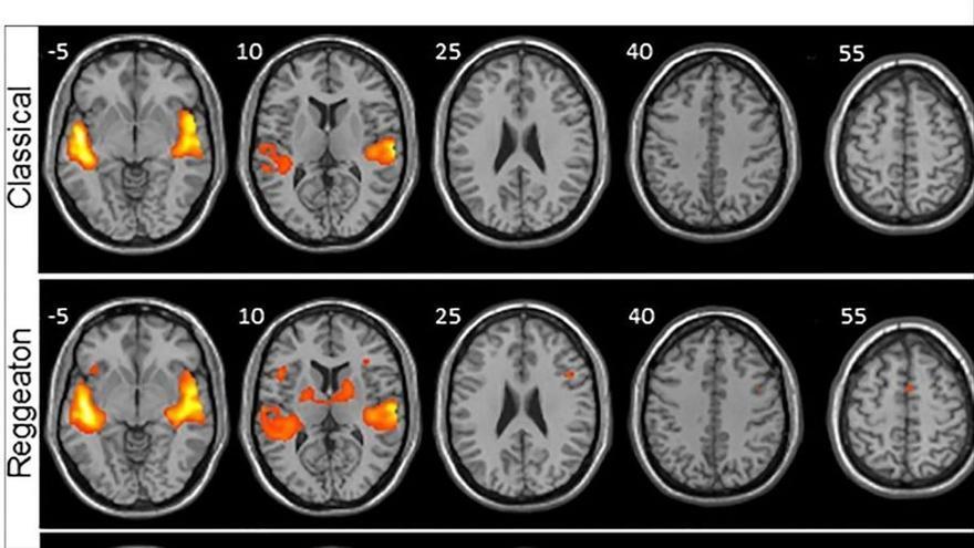 El reguetón provoca mayor actividad cerebral que escuchar música clásica o folclore