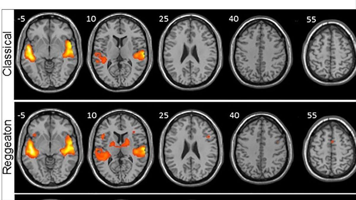 Pruebas del estudio que muestra que el reguetón provoca mayor actividad cerebral que escuchar clásica o folclore.