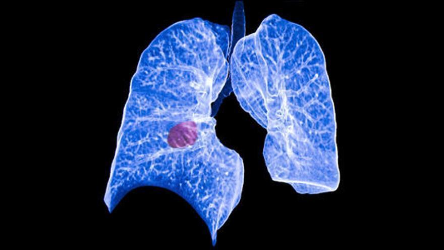 La Arrixaca participa en el primer tratamiento contra uno de los cánceres de pulmón más agresivos