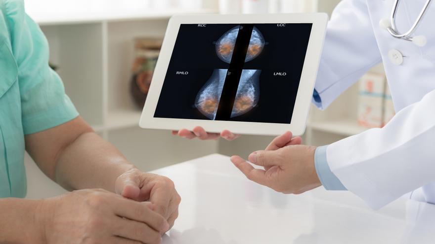 Un nuevo modelo predice el riesgo de tener cáncer de mama hasta 20 años vista