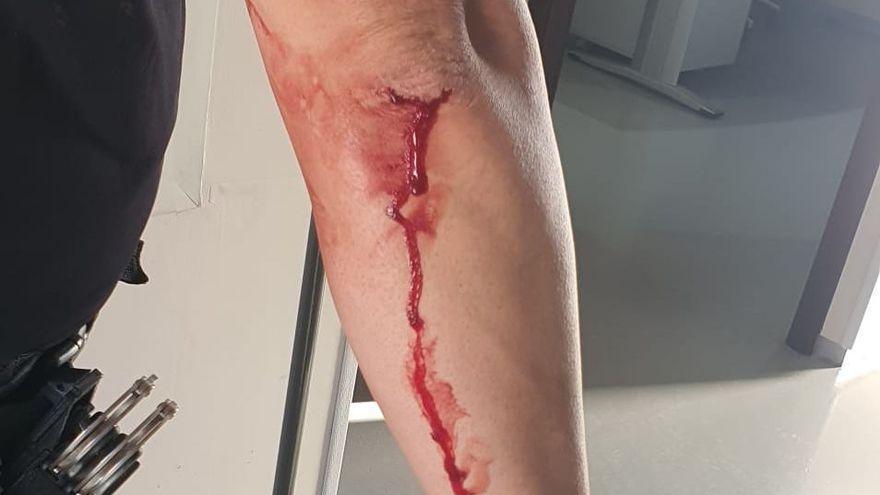 Un okupa agrede a un policía en Murcia: intenta cortarle el cuello con un vaso de cristal