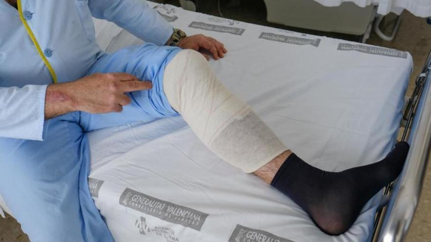 Un hombre lleva diez días hospitalizado en la C. Valenciana por  la picadura de una araña