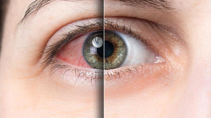El 'ojo seco', la enfermedad que crece con las pantallas