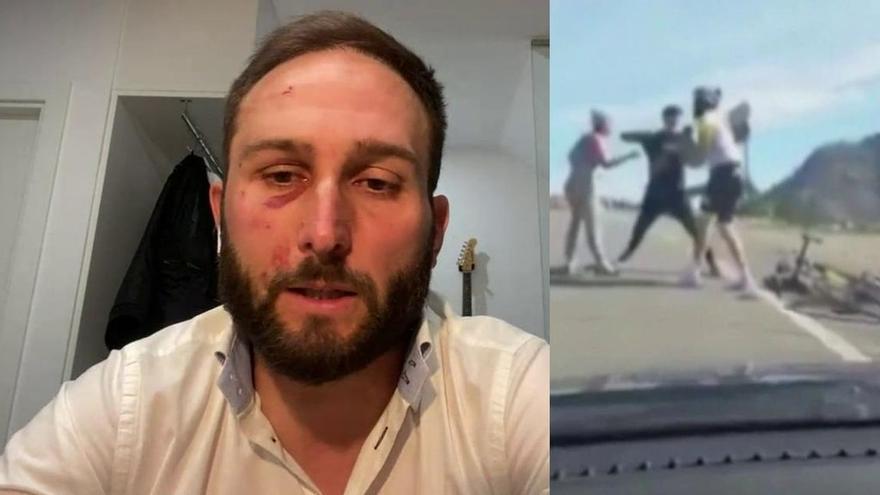"""El ciclista agredido en Gran Canaria, en el programa de Ana Rosa: """"Un lado de la cara no lo puedo usar"""""""