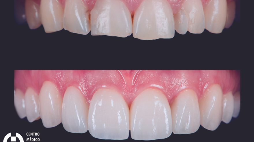 Técnica del diseño de sonrisa digital: comprueba los resultados antes del tratamiento