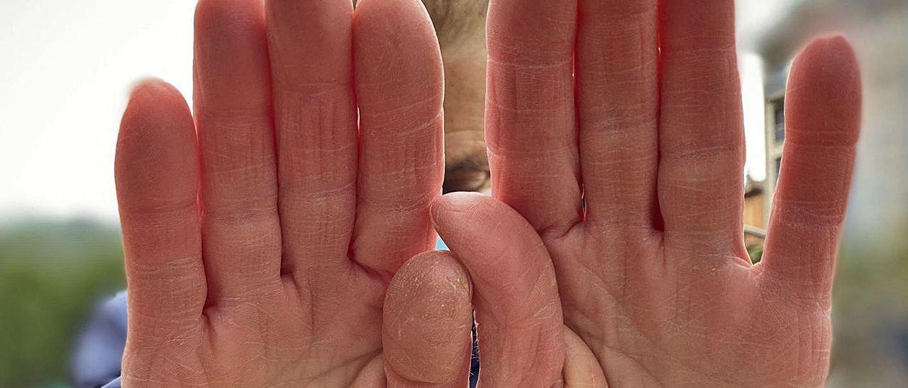 Alicia, mujer maltratada en los setenta, se tapa la cara con las manos.