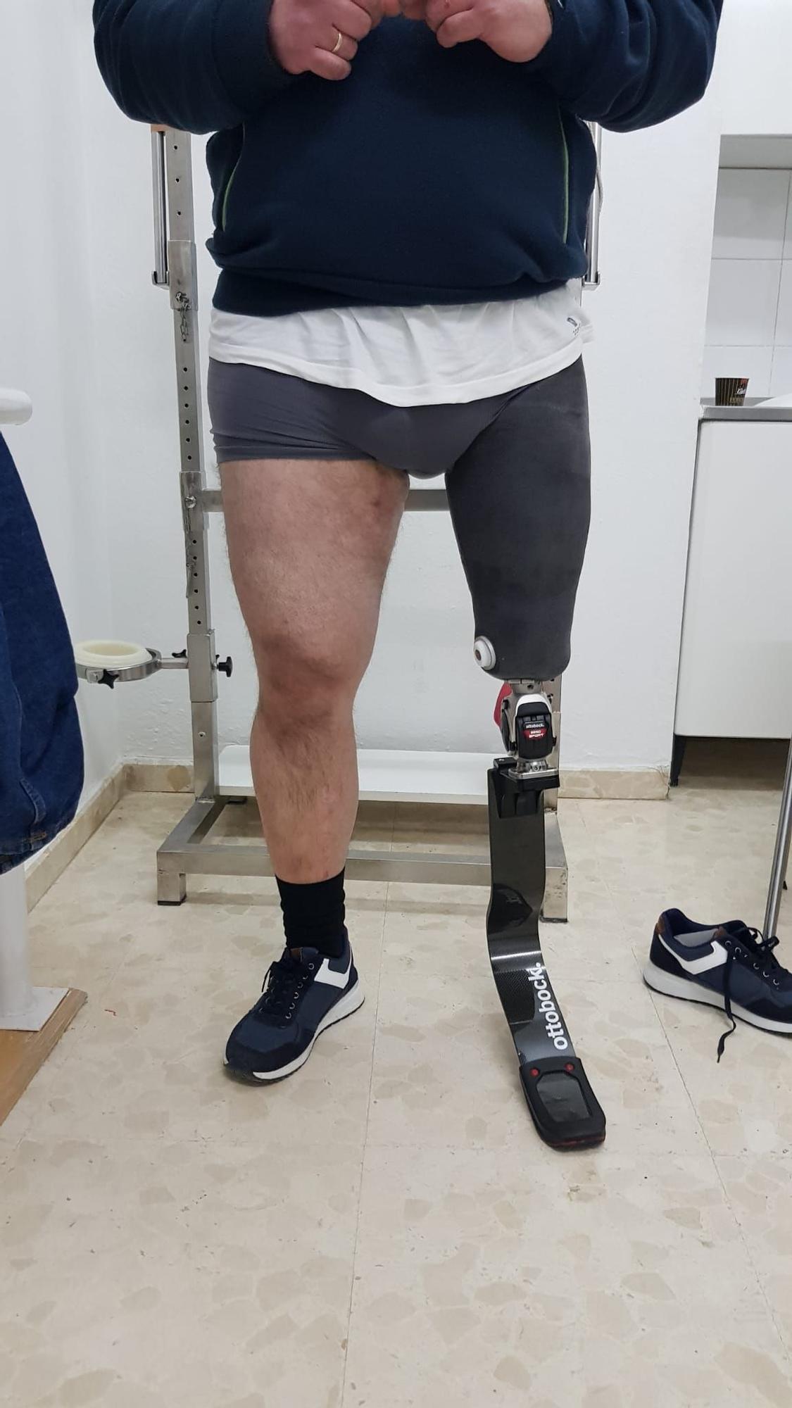 Cómo se fabrica la prótesis de un campeón