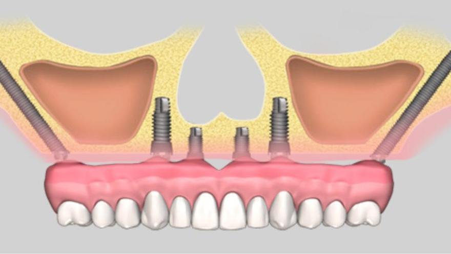 Implantes sin injertos, más cómodos y eficaces