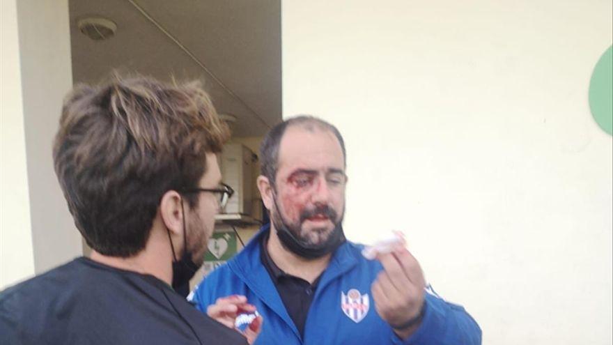 Batalla campal entre los juveniles de dos equipos de Málaga
