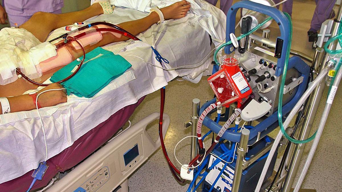 Sistema de oxigenación extracorpórea del hospital La Fe de València. | LEVANTE-EMV