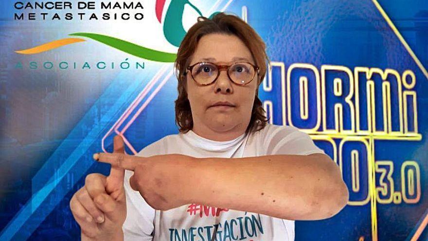 Fallece Olga Sande, la coruñesa que llevó a 'El Hormiguero' el reto viral para dar a conocer el cáncer de mama metastásico