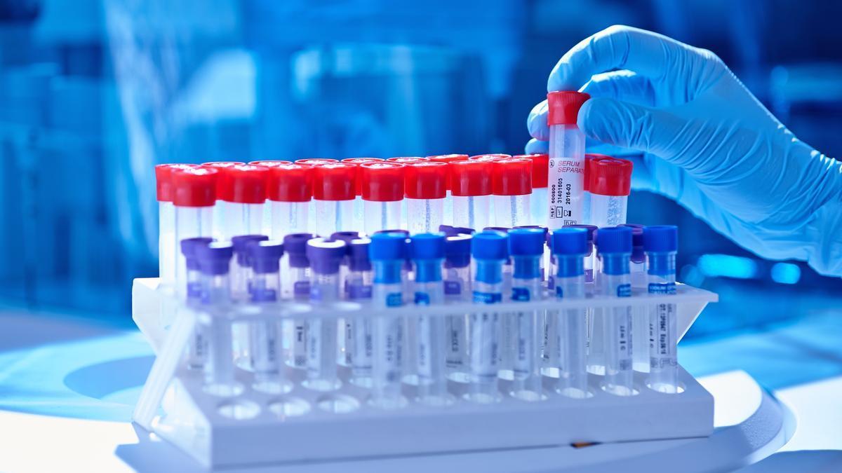 Un sanitario prepara un test PCR para analizar una muestra en busca de variantes de coronavirus