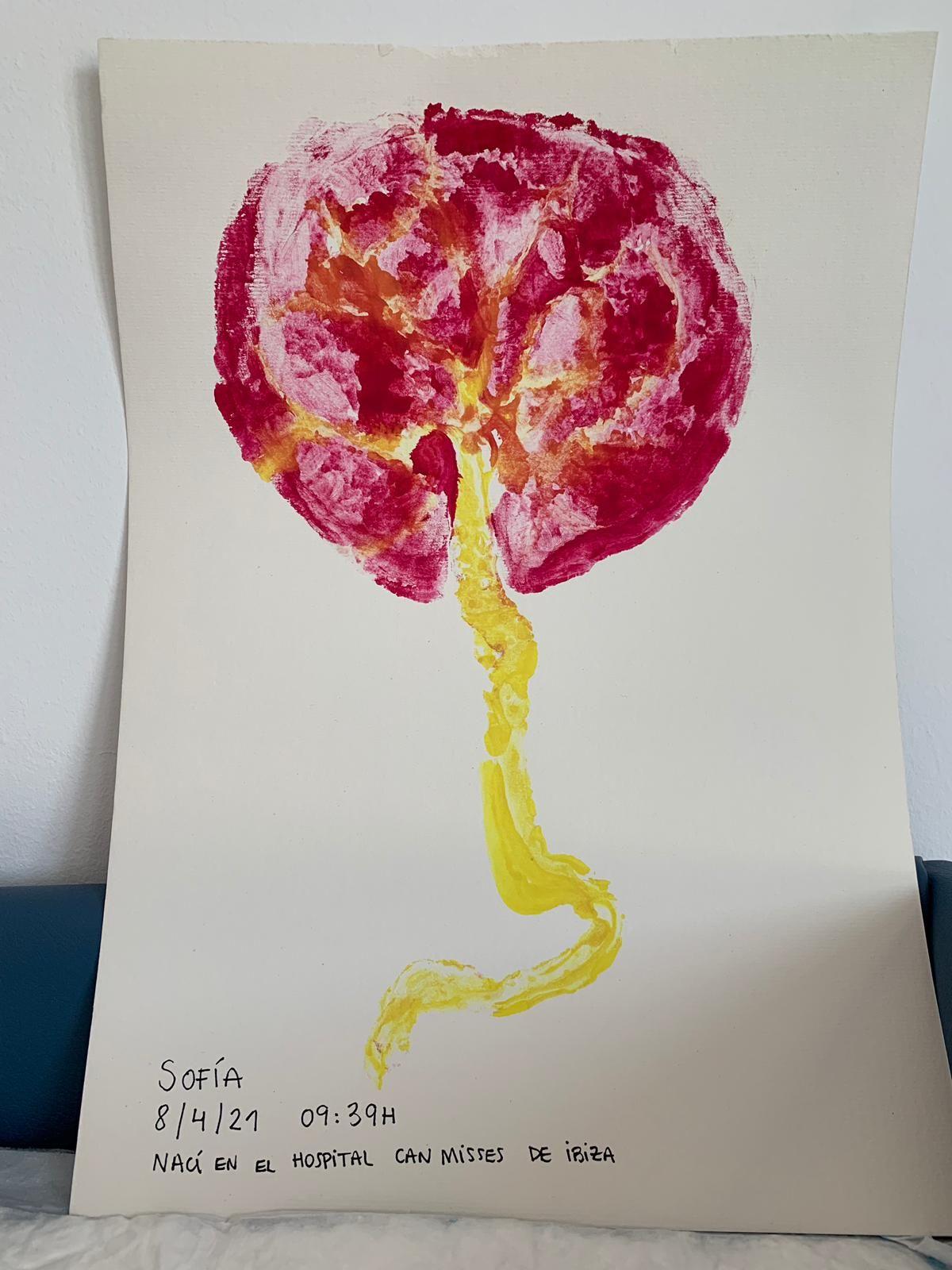 Arte que nace de la placenta en Ibiza