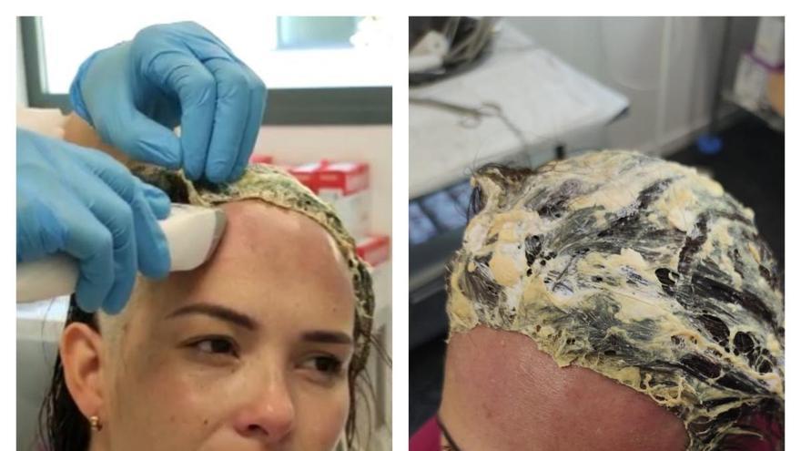Investigan el ataque a una mujer a la que colocaron un gorro impregnado de pegamento