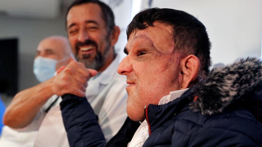 """Alí, el joven al que Cavadas le ha extirpado un tumor gigante: """"Soy otra persona, ahora tengo vida"""""""