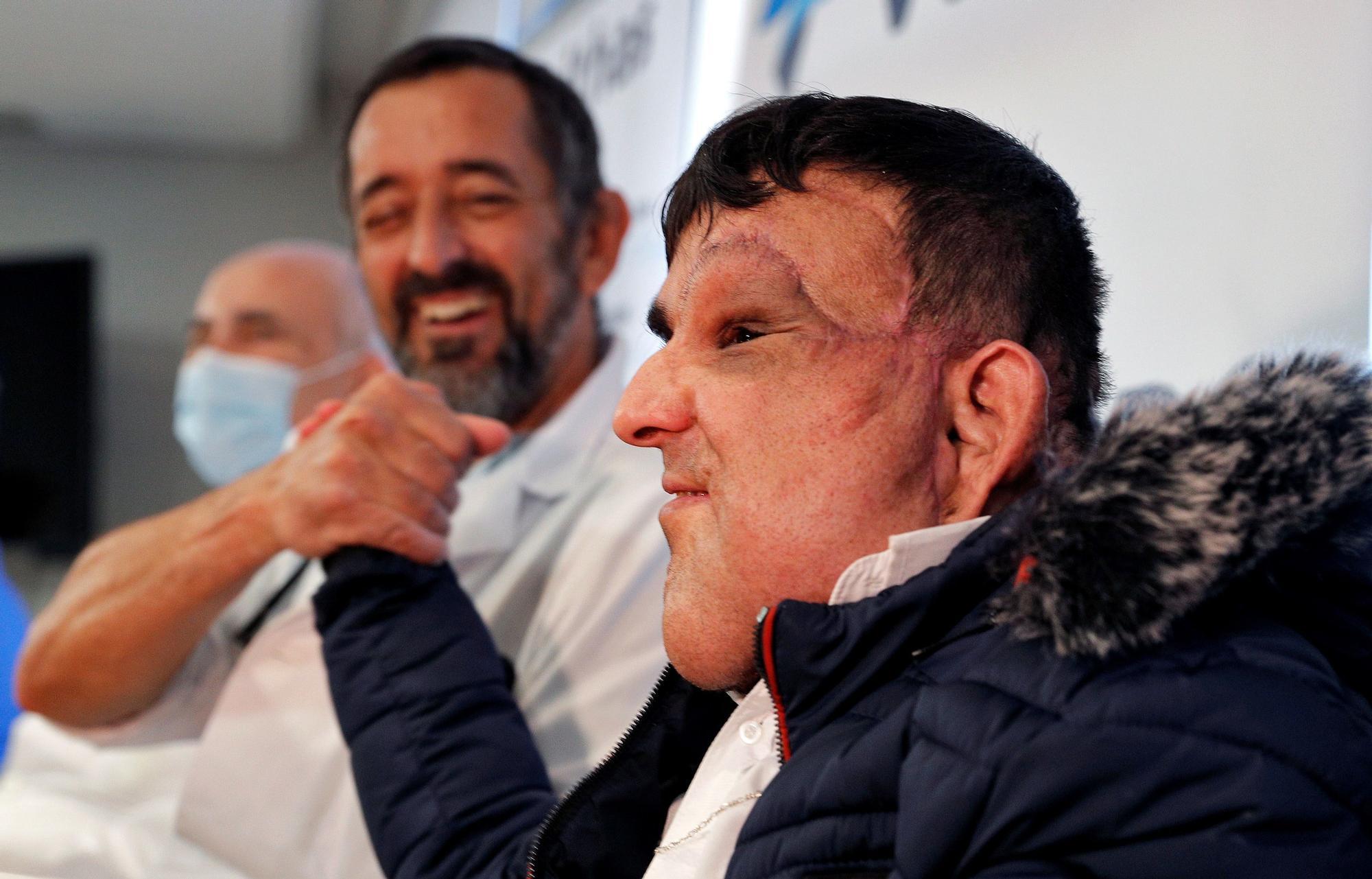"""El paciente al que Cavadas ha extirpado un tumor: """"Siento que soy otra persona"""""""