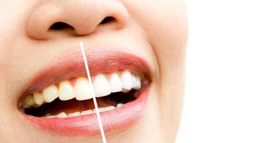 Cómo blanquear los dientes con remedios caseros