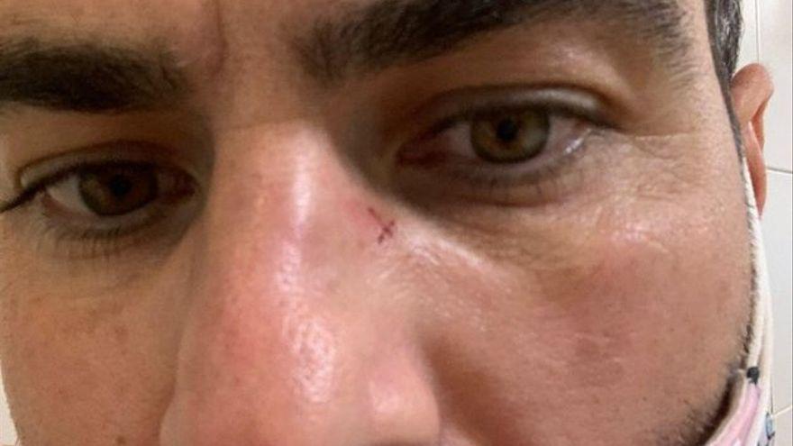 Un joven denuncia haber recibido una paliza en una oficina del SEPE cuando iba a cobrar el ERTE