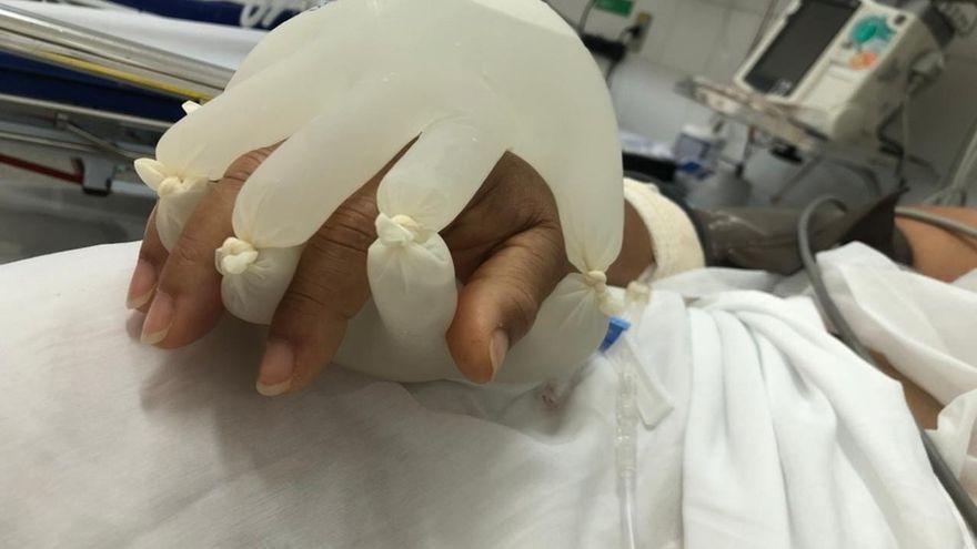 """La """"mano de Dios"""" que intenta reconfortar a los enfermos de covid aislados"""