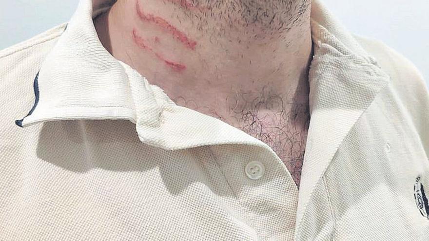 Heridos cinco funcionarios en dos agresiones en la cárcel de Villena