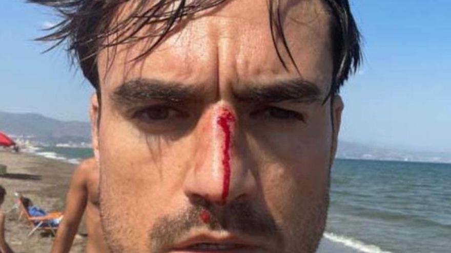 Un joven denuncia una agresión homófoba en la playa canina del Guadalhorce