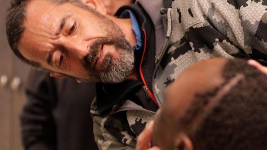 El doctor Cavadas interviene múltiples cánceres de piel en un paciente albino de Guinea